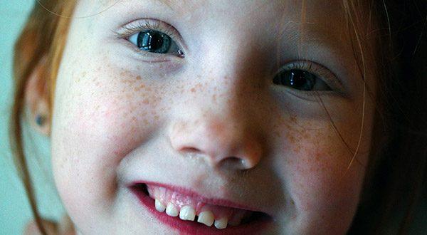 Kurzsichtigkeit (Myopie) bei Kindern. Foto: pixabay